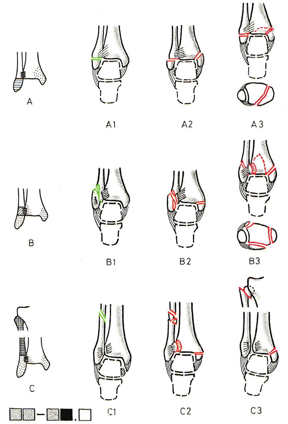 AO klasifikace zlomenin hlezna (Převzato [24])