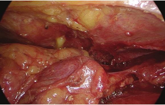 Videothorakoskopický pohled na adenom příštítného tělíska uloženého v thymu Fig. 4: Videothoracoscopic view of parathyroid adenoma in the thymus