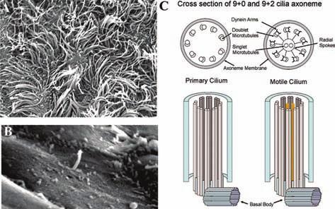Primární cilie. A) pohyblivé řasinky v elektronovém mikroskopu B) solitární primární cilie v elektronovém mikroskopu C) strukturální rozdíly mezi pohyblivou a nepohyblivou cilií pohyblivá řasinka (vpravo) má 9+2mikrotubulů primární cilie (vlevo) má jen 9+0 mikrotubulů