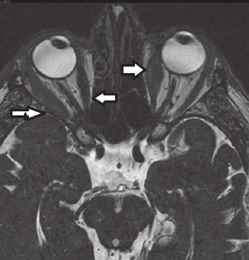 Obr. 4 T2 CISS obraz v rovině příčné se zánětlivou infiltrací okohybných svalů.