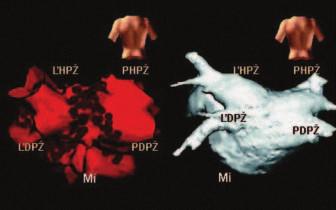 Vľavo trojrozmerný model ľavej predsiene s vústením štyroch pľúcnych žíl vytvorený NavX systémom v PA projekcii.