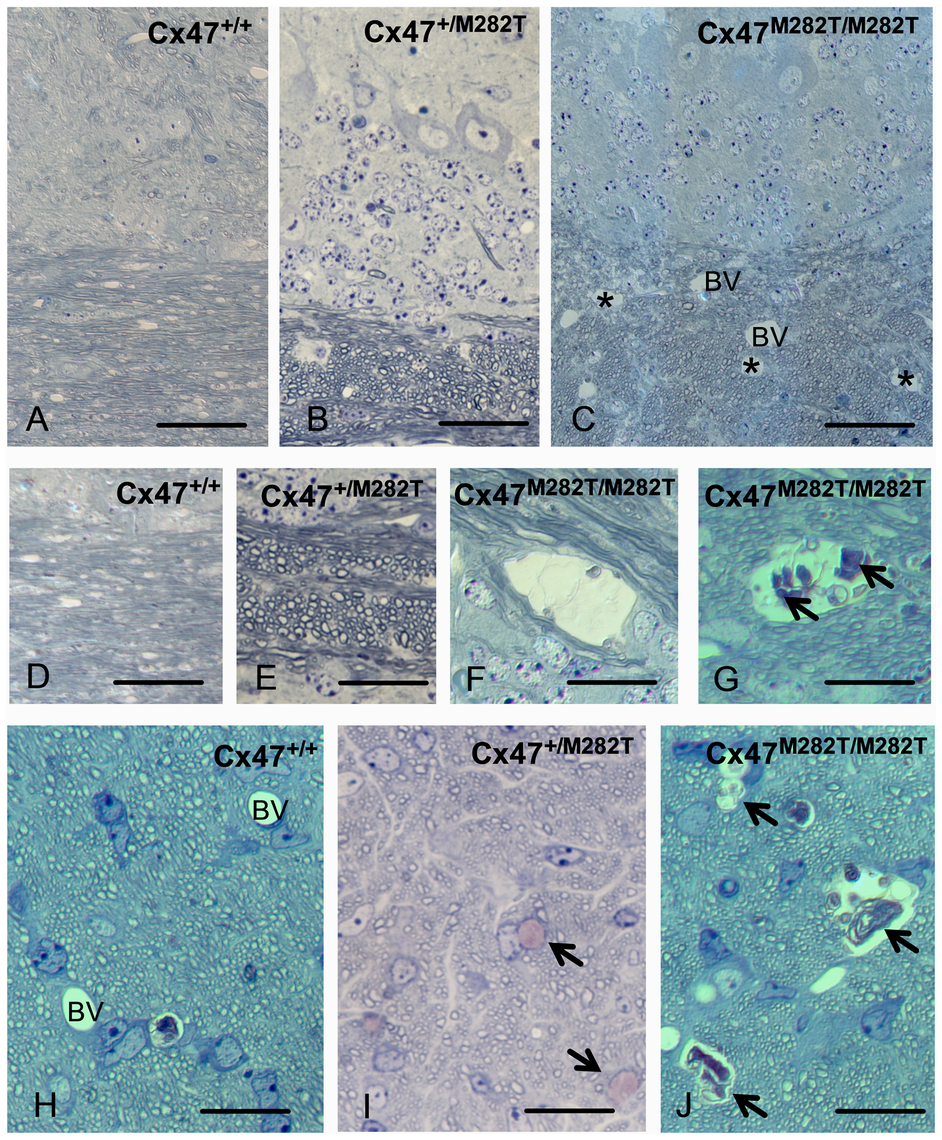 Toluidine blue/pyronin g stained semi-thin sections reveal cystic spaces in white matter of <i>Cx47<sup>M282T/M282T</sup></i> mice.