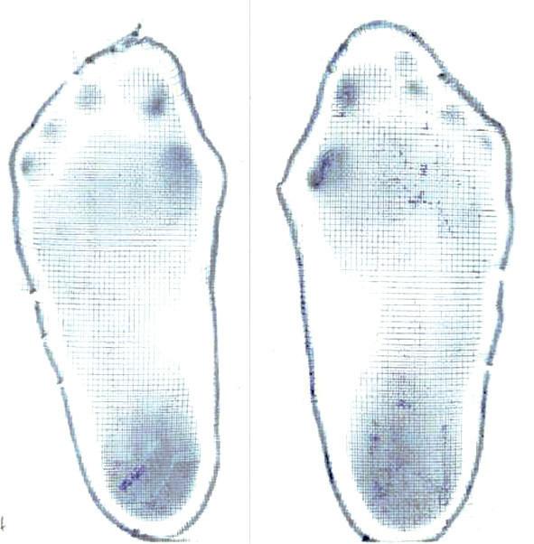 Obr. 7a. Hodnocení stoje a chůze u pacienta s aspekčním nálezem ploché nohy pomocí plantogramu (7a), stoje na FDM desce (7b) a chůze na FDM desce (7c).