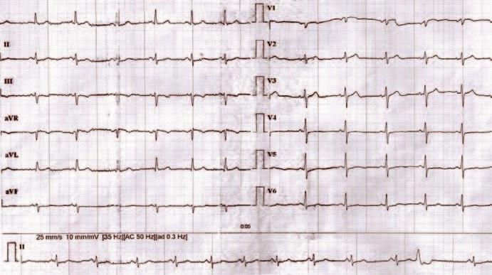 EKG záznam 3 mesiace po liečbe.