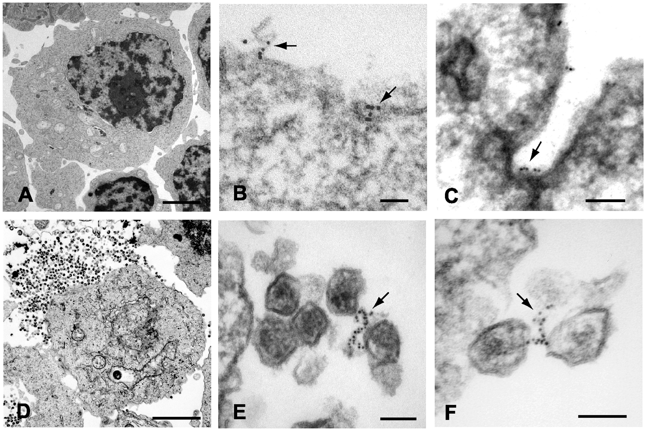 Immunoelectron micrographic analysis of tetherin on IFN-α stimulated A3.01 control cells and samples infected with pseudotyped NL4.3/Udel.