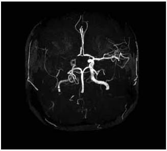 MRA – nativní MR angiografie (Maximal Intensity Projection Rekonstrukce). Patrný je uzávěr ACM a A1 segmentu ACA vpravo.