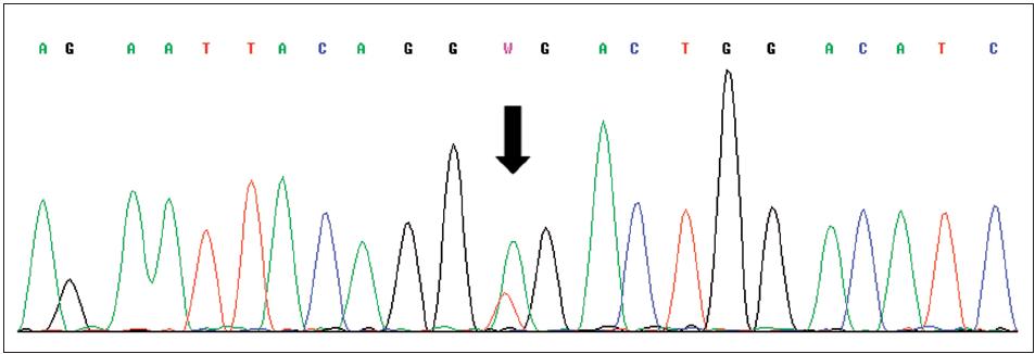 Sekvence části genu VHL, šipka označuje mutaci c.529A>T (p.R177X) v exonu 3 Fig. 3. Sequence of exon 3 of VHL gene with mutation c.529A>T (p.R177X) indicated by arrow