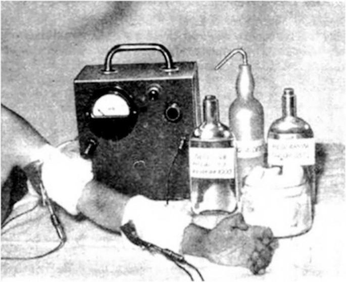 První přístroj pro pilokarpinovou iontoforézu.
