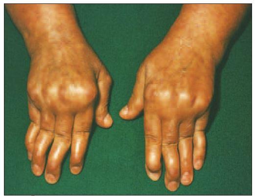 Šľachové deformity u pacienta s SLE (Jaccoudova artropatia).