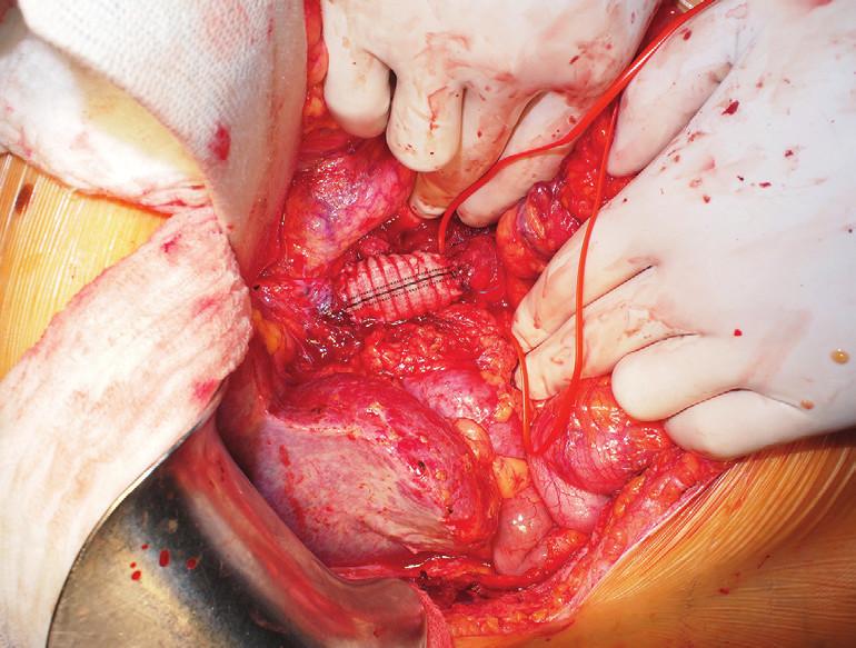 Stav po náhradě defektu ve v. cava inf. protézou Fig. 7: The anterior wall of inferior caval vein substituted with a vascular prosthesis