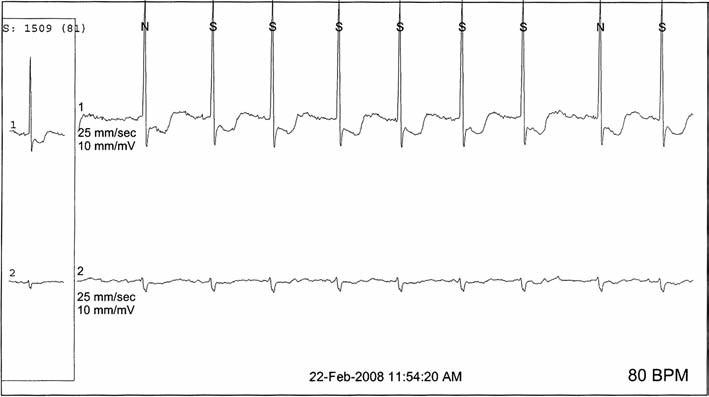 Signifikantná ischémia myokardu aj s fibriláciou z EKG Holter nálezu zo súboru