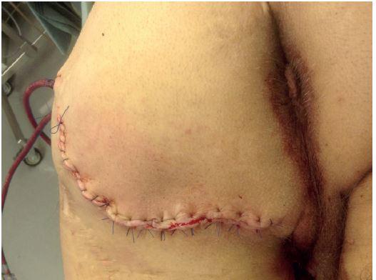 Výsledek operace: mobilizace kožního laloku, drenáž Fig. 6: Result of the operation: mobilization of the skin flap; drainage