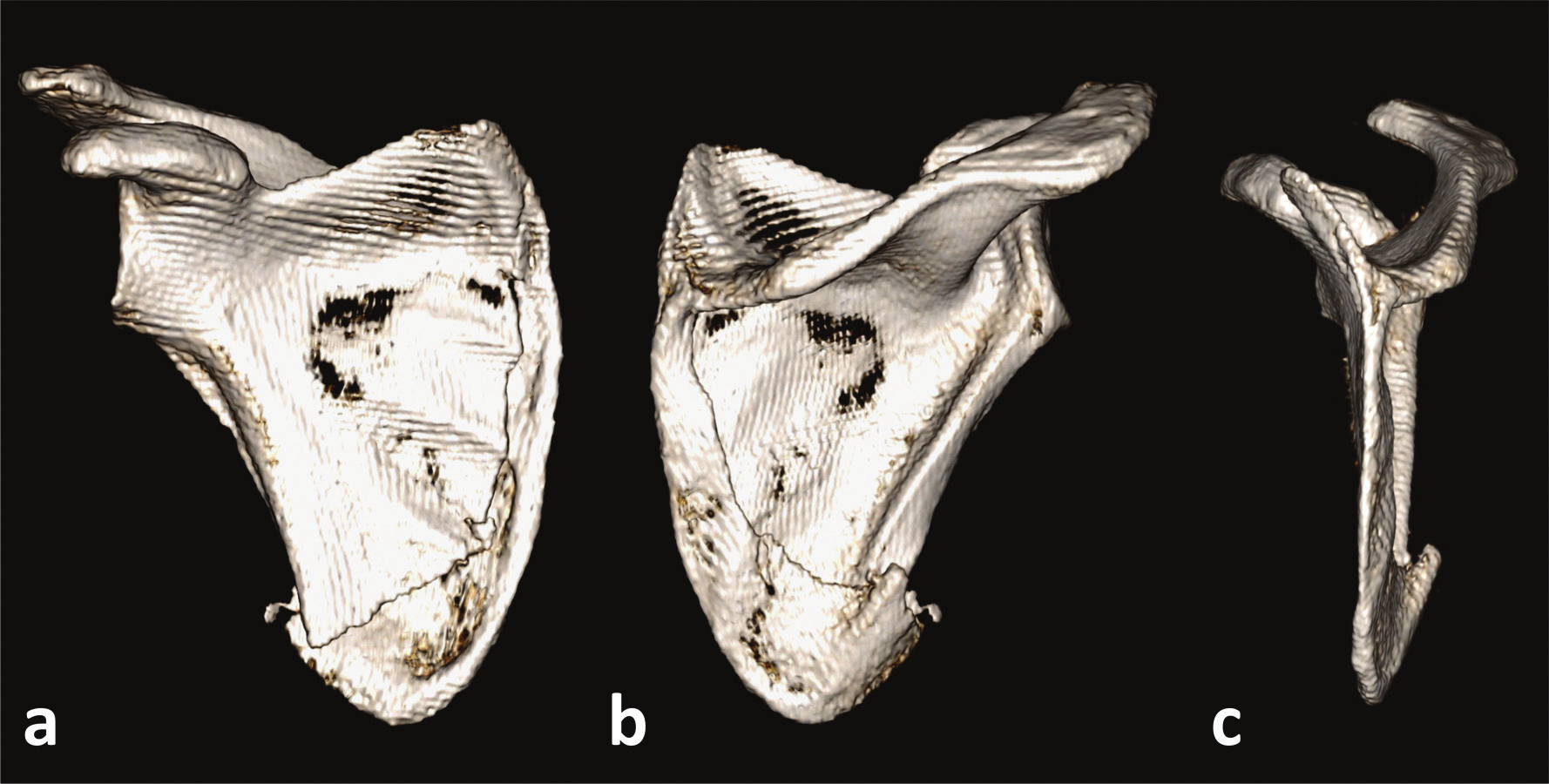 Zlomenina apexu dolního úhlu s postižením mediálního okraje a – přední pohled, b – dorzální pohled, c – mediální pohled. Fig. 5: Fracture of apex of the inferior angle with medial border involvement a – anterior view, b – posterior view, c – medial view.