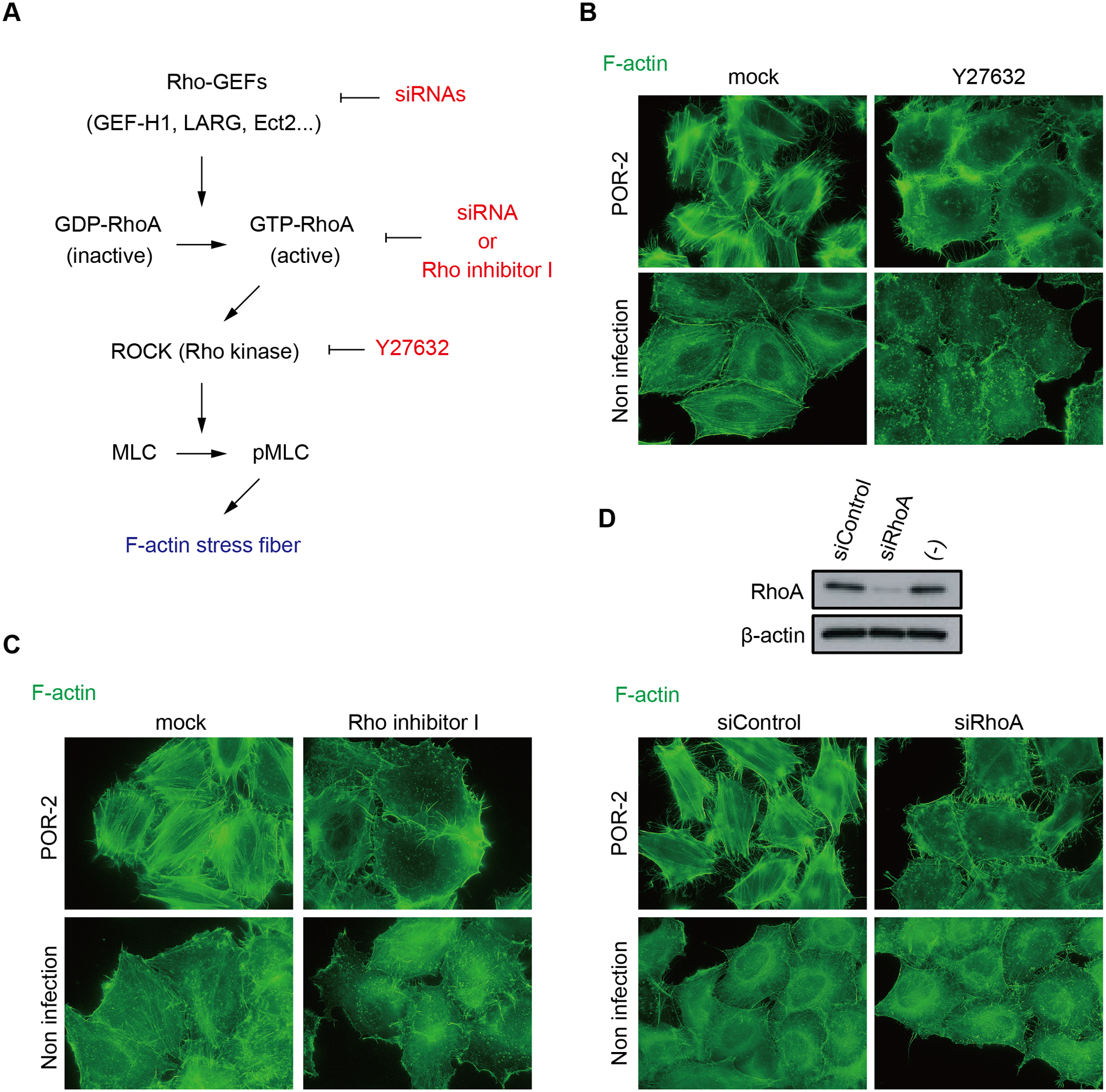 The RhoA-ROCK pathway is essential for T3SS2-dependent stress fiber formation.