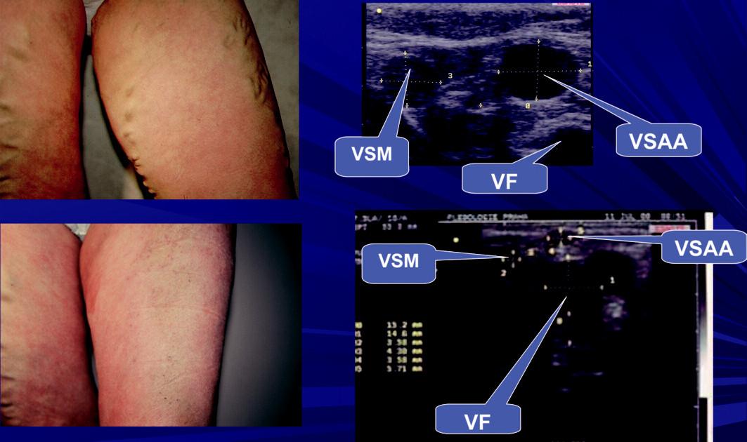 Stav před a po AF na LK. Safénový komplex typ I – na sonografu pod fascia muscularis odstupuje z VSM VSAA, která je dominantní a může být lehce zaměněna se samotným kmenem, který je menší. Na stehně nejsou intrafsciální úseky safén klinicky manifestní. Po provedené AF dojde k atrofii sunfasciálních úseků safén.