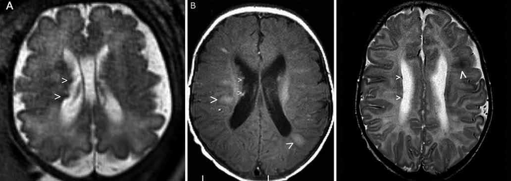 Prenatální (a) a postnatální (b, c) MR vyšetření u pacienta 2. Obr. 3a) Prenatální MR vyšetření mozku, 34. gestační týden – dva subependymální noduly v pravé postranní komoře (šipky), nezralá myelinizace. Obr. 3b) Postnatální MR vyšetření mozku, 2. měsíc života – sekvence flair v axiální rovině – mnohočetná hyperintenzní ložiska charakteru tuberů s migračními liniemi (velké šipky) a subependymální noduly (malé šipky). Obr. 3c) Sekvence T2 v axiální rovině – vícečetné subependymální noduly jsou drobné, hyposignální (malé šipky). Tuber frontálně vlevo (velká šipka).