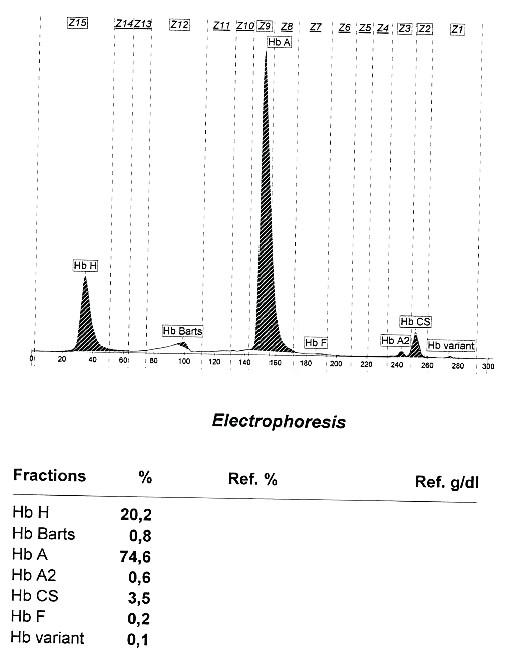 Kapilární ELFO hemoglobinu u nemocné s kombinací heterozygotní alfa talasemie a Hb Constant Spring