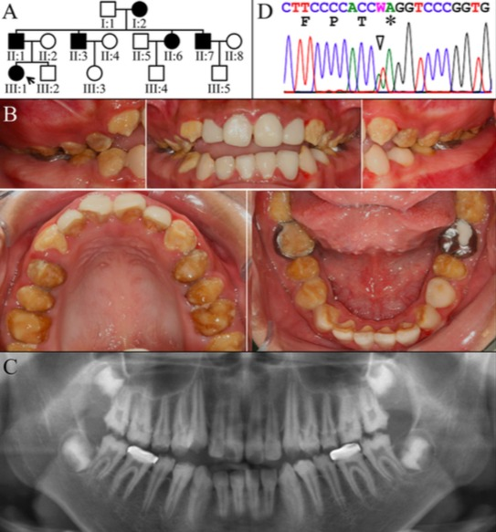 Figure 2.  Family 2. A: Pedigree of Family 2 Proband (III:1). B: Oral photographs showing dental enamel malformations catergorized as autosomal dominant hypocalcified amelogenesis imperfecta (ADHCAI). C: Panorex radiograph showing hypocalcified enamel that contrasts poorly with dentin. D: Chromatogram showing that the proband was heterozygous for FAM83H mutation (g.11199A>T; c.1915A>T) that converted a Lysine codon (AAG) at position 639 into a premature termination codon (TAG). W = A or T.