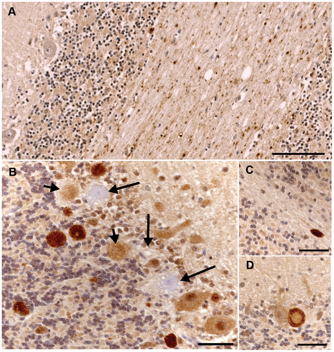 Ubiquitin immunohistochemical staining of the cerebellum of an unaffected 11-year-old Dachshund and an affected 2.5-year-old Gordon Setter.