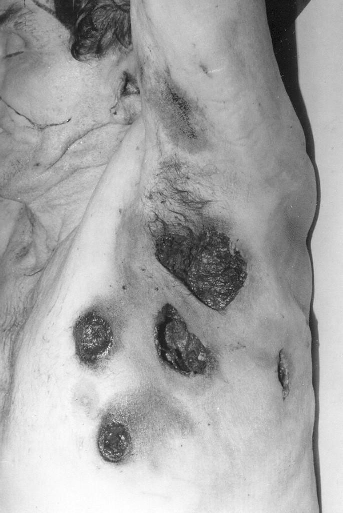 Vstřely v oblasti levé boční části hrudníku s excentricky uloženými lemy zakouření. Výstřely lokalizované ve střední pažní čáře. Sebevražda střelami S-BALL Plastik (Sellier&Bellot©) střelbou z absolutní blízkosti s úhlovým přiložením hlavní brokovnice