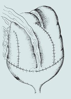 Ileocékální augmentace. (A – ileocékální resekční linie střevního segmentu, B – příprava detubularizovaného segmentu, sutura okrajů střevního segmentu, rekonfigurace s vytvořením kupole, C – našití vytvořené kupole na stěny močového měchýře)