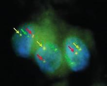 Analýza ETV6 – NTRK3 fúzního genu MASC (SKSŽ)-FISH zobrazení (s laskavým svolením prof. Skálové).