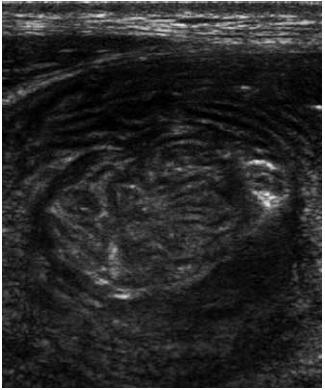 Celiakální sprue – intermitentní invaginace. Fig. 7. Celiac sprue – intermittent invagination.