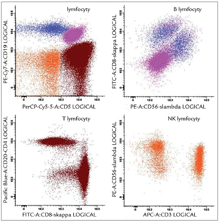 Analýza lymfocytů pomocí Euroflow přístupu. Znázorněná tzv. Lymphoid Screen Tube (LST) obsahuje 11 MoAb umožňujících jednoduše prověřit zastoupení subpopulací lymfocytů, včetně ověření klonality B-lymfocytů. Na obrázku vzorek B-CLL s patologickými CD5<sup>+</sup>CD19<sup>+</sup>sκ<sup>–</sup>sλ<sup>–</sup> B-lymfocyty a normálním zastoupením T, NK i NK-T-lymfocytů.