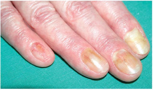 Onycholysis a onychomadesis (na 5. prstu) při Lyellově syndromu po piroxikamu