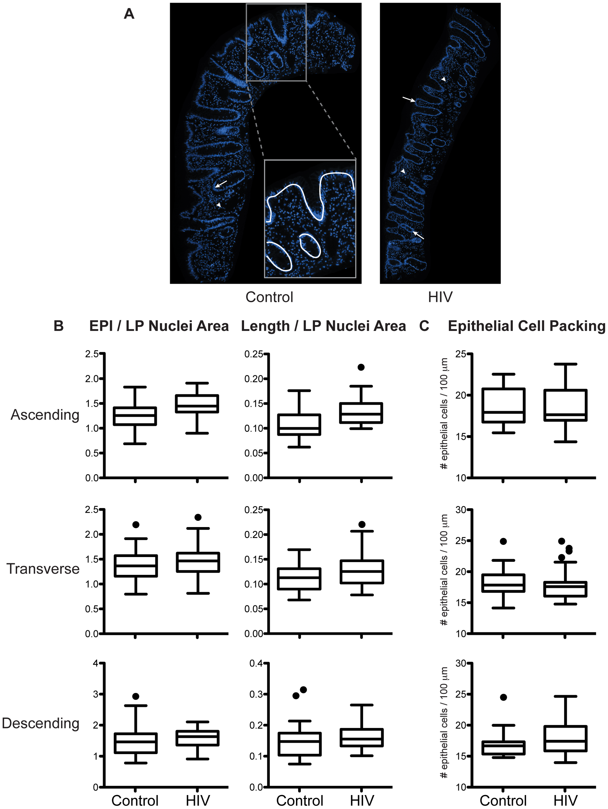 Relative abundance of epithelial cells in intestinal biopsies is not decreased in HIV+ individuals.