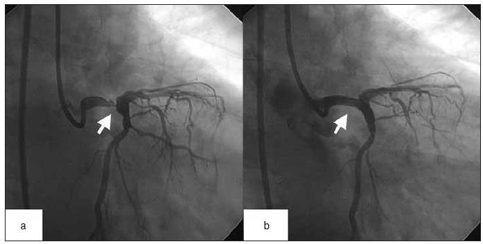a – koronarografický nález nemocného s akutním infarktem myokardu na podkladě subtotální stenózy distálního kmene ACS (označeno šipkou). b – tentýž nemocný po úspěšné provedené direktní angioplastice a implantaci stentu (šipka). Výsledně bez rezidua na kmeni ACS, bylo dosaženo TIMI flow III.