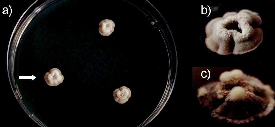 a, b, c. Onychocola canadensis, subkultúry (Sabouraudov agar, 25 °C); a) 3-týždňové, priemer kolónií 8-10 mm, b) 5- týždňová kolónia, detail, skutočná veľkosť 12 mm, c) zhodná 10-týždňová kolónia, detail, priemer 21 mm (foto Ing. K. Furdíková) Fig. 3 a, b, c. Onychocola canadensis, subcultures (Sabouraud agar, 25 °C); a) 3-weeks colonies, 8-10 mm in diameter, b) a 5-week colony, detail, 12 mm in diameter, c) the same colony at 10 weeks, detail, 21 mm in diameter (photo K. Furdíková)