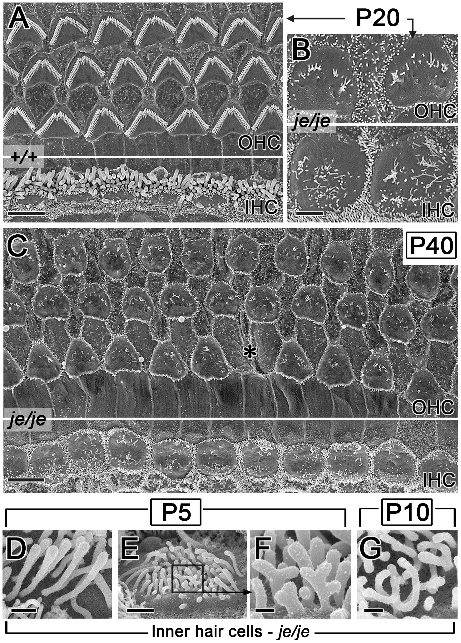 Advanced stereociliary degeneration on cochlear hair cells and peculiar stereociliary defects on inner hair cells.