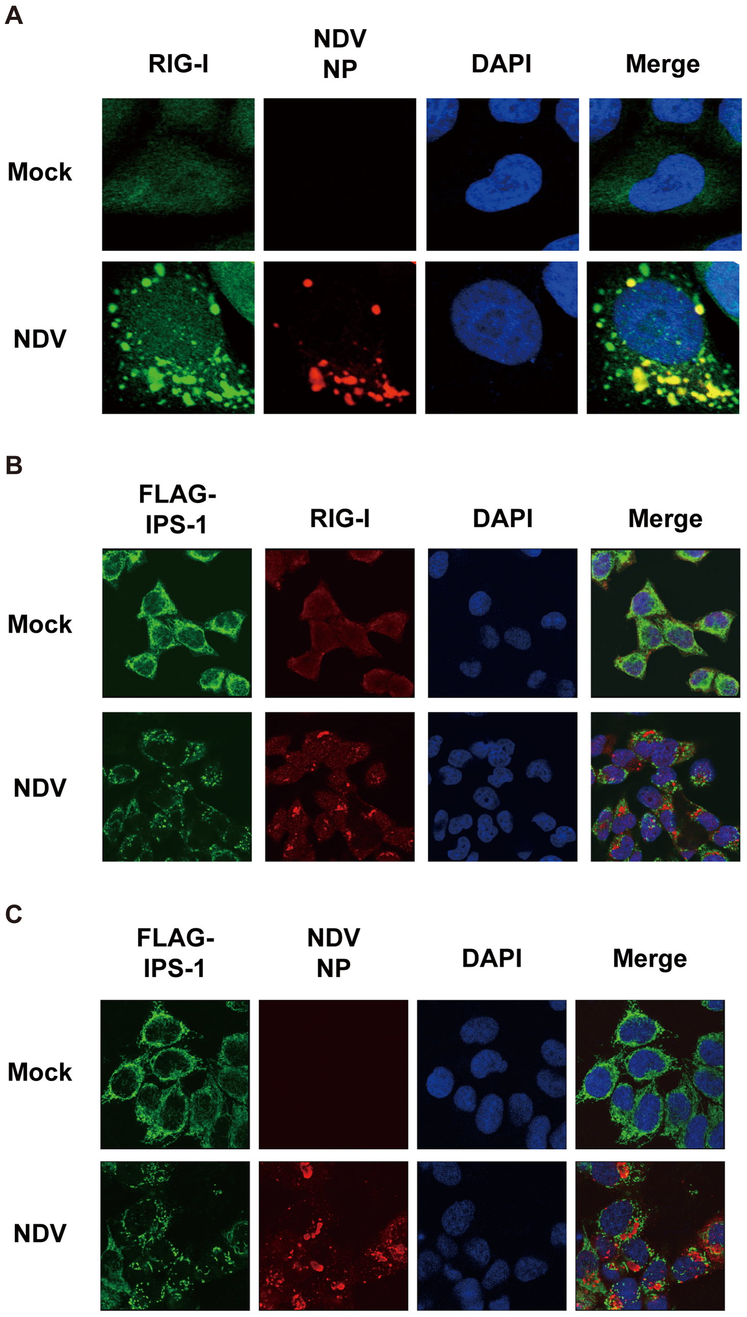 Localization of viral nucleocapsid, RIG-I, and IPS-1.