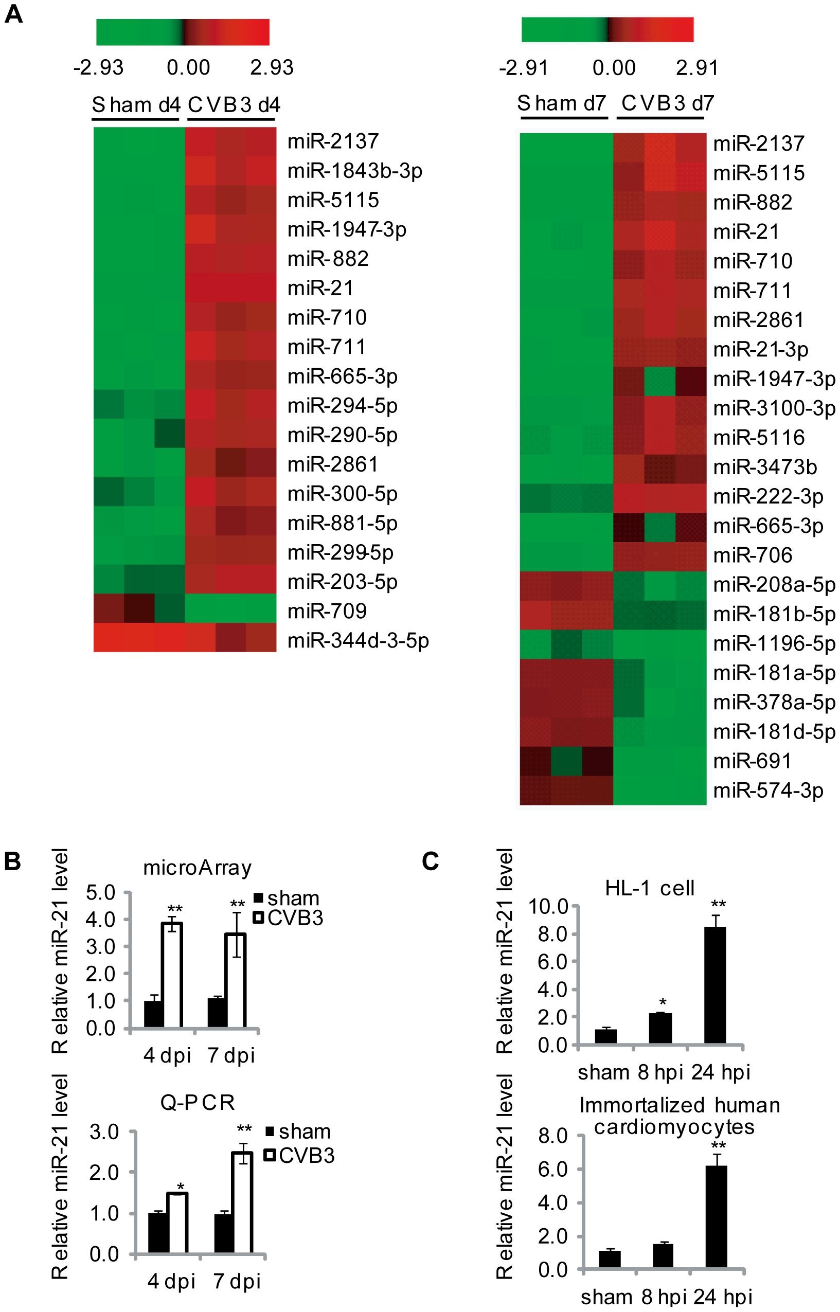 CVB3 infection upregulates miR-21 expression.