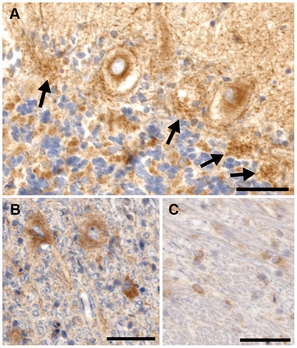 Rab24 immunohistochemical staining of the cerebellum of an affected dog.