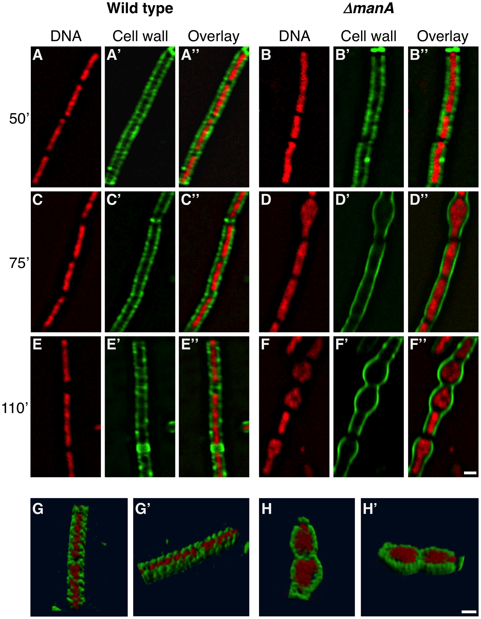 Following cell wall architecture and chromosome morphology.