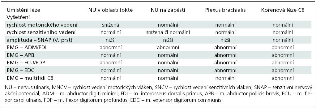 Diferenciální diagnostika léze n. ulnaris v lokti – EMG nálezy.