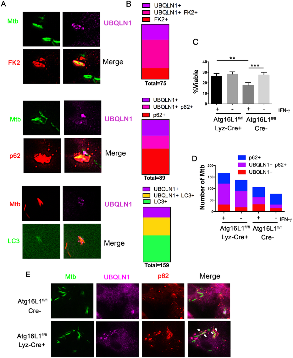 UBQLN1 co-localizes with Mtb that are cleared through autophagy.