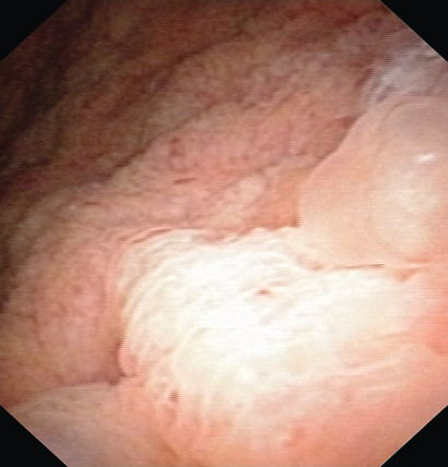 Cystoskopie před operací Fig. 1. Cystoscopy prior TUR