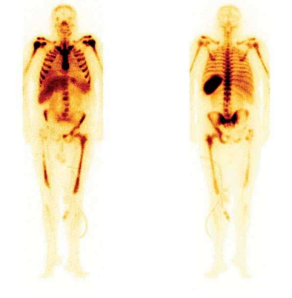Celotělová scintigrafie skeletu po aplikaci 700 MBq radiofarmaka 99mTc- -besilesomab (značená monoklonální protilátka se specifickou vazbou na antigen NCA-95 nacházející se na buněčné membráně granulocytů a granulocytárních prekurzorů). Výpad záchytu radiofarmaka v pravé polovině těl obratlů L3 a L4, dolní polovině pravé lopaty kyčelní, pravé sedací a stydké kosti. Výrazně je též snížen záchyt v proximální třetině pravého femuru. Fotopenie svědčí pro těžké poškození kostní dřeně, vzhledem k anamnéze nejspíše osteomyelitidou.