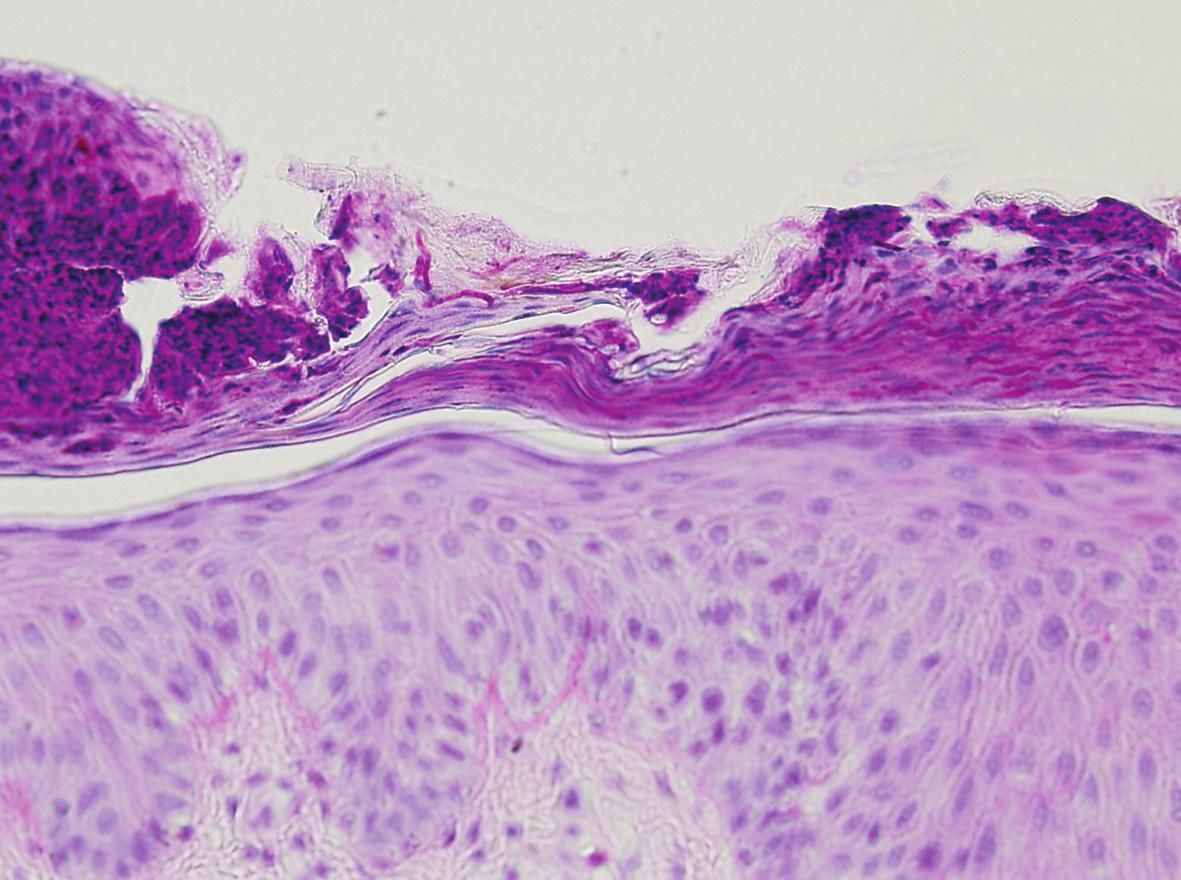 Houbová vlákna v rohové vrstvě (PAS, 200x )