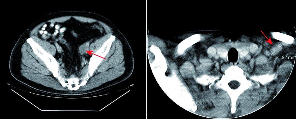 Vstupní CT vyšetření. Na obrázku vlevo CT vyšetření zobrazuje v pánvi vlevo podél cévního svazku patologický uzlinový infiltrát (červená šipka). Na obrázku vpravo jsou při CT vyšetření krku zachyceny tři viditelné zvětšené lymfatické uzliny patologické vizáže v oblasti levé klíční kosti (červená šipka).