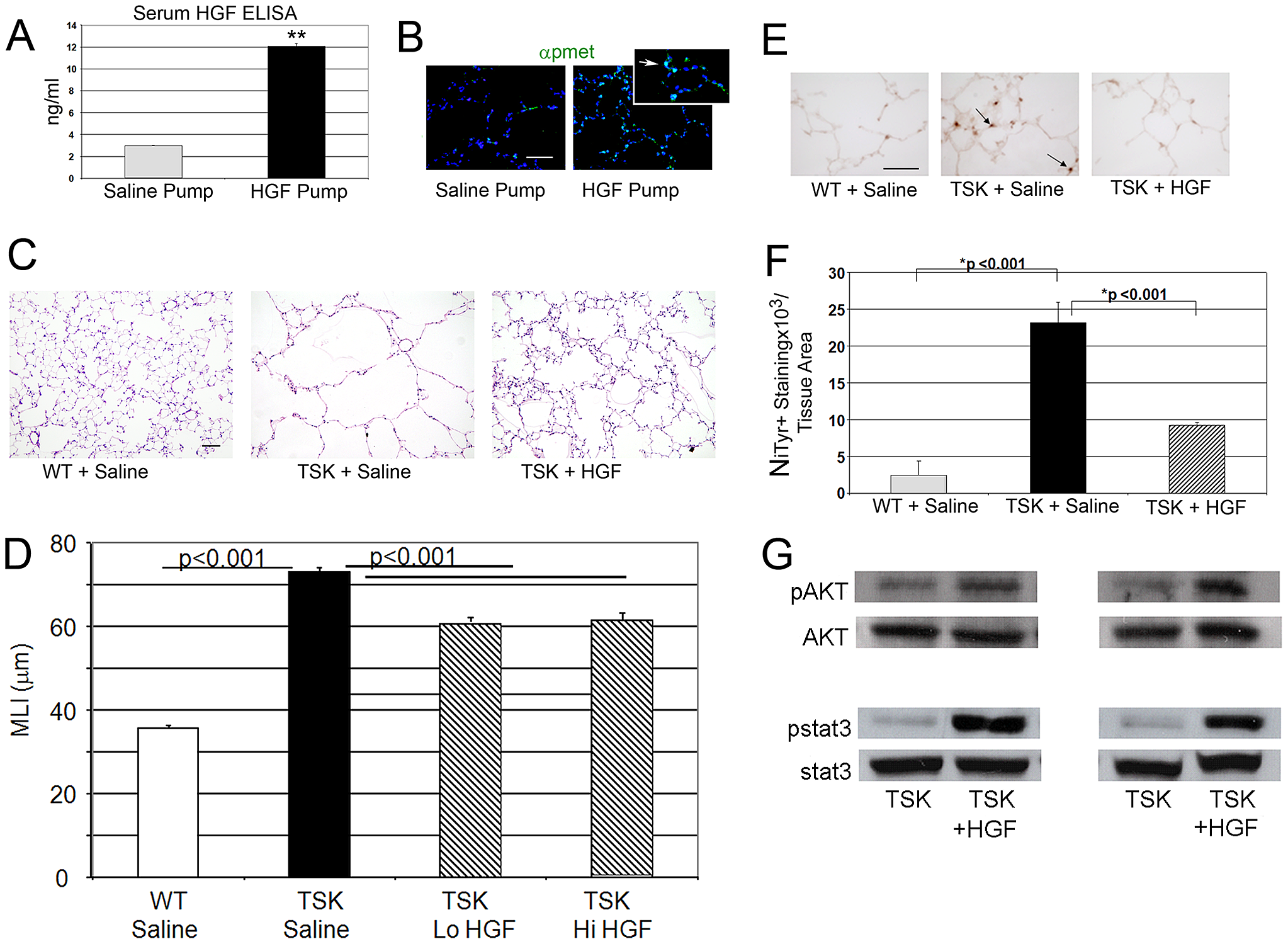 HGF treatment improves airspace caliber in TSK/+ mice.
