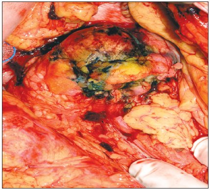 Stejný tumor po provedení RFA Fig. 2. The same tumor following the RFA procedure