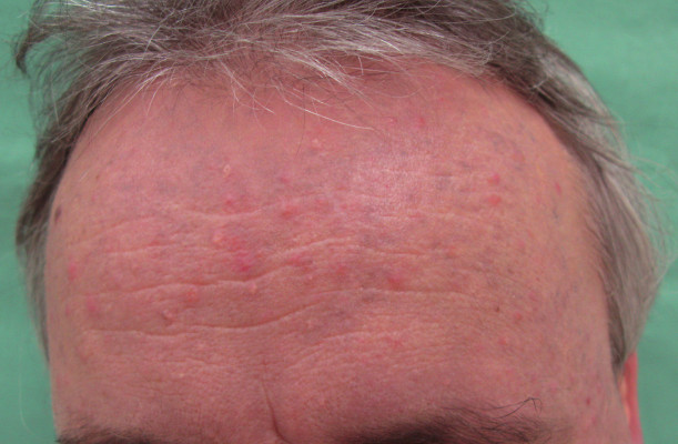 Pacient č. 1 – detail čela.