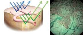 Povrchové kapiláry se v NBI obraze znázorňují hnědě zatímco podslizniční vény cyanoticky.