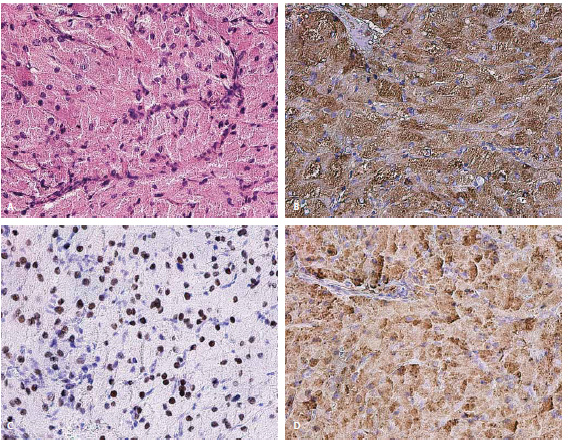 Histologické preparáty nádoru z granulárních buněk. A – barvení hematoxylin–eozin, zvětšení 200×; B – imunohistochemické barvení na antichymotrypsin, zvětšení 200×; C – imunohistochemické barvení na TTF-1, zvětšení 200×; D – imunohistochemické barvení na antitrypsin, zvětšení 200×. Fig. 2. Histological preparations of the granular cell tumor. A – staining of hematoxylin-eosin, magnification 200×; B – immunohistochemical staining on antichymotrypsin, magnification 200×; C – immunohistochemical staining on TTF-1, magnification 200×; D – immunohistochemical staining on antitrypsin, magnification 200×.