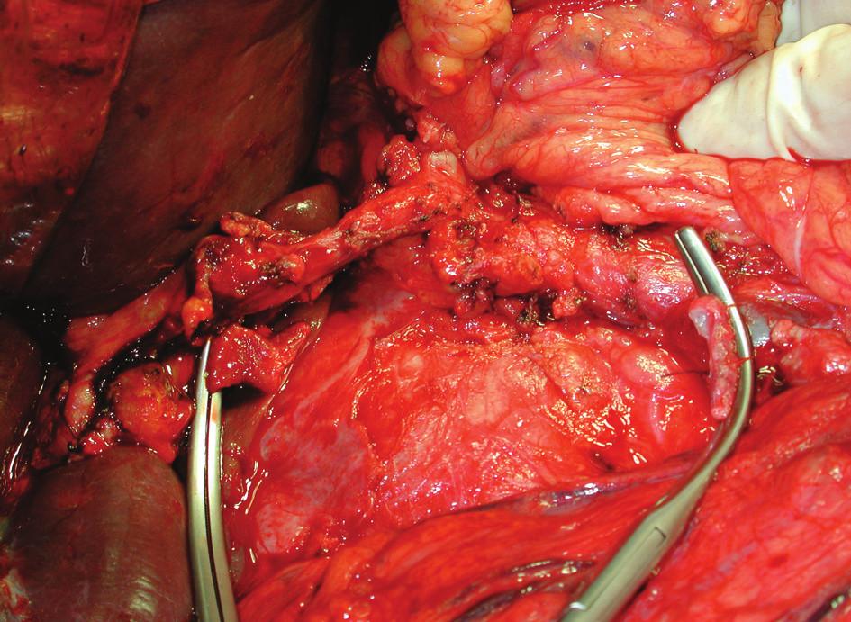 Pankreatoduodenektomie s resekcí porty, stav po odstranění preparátu