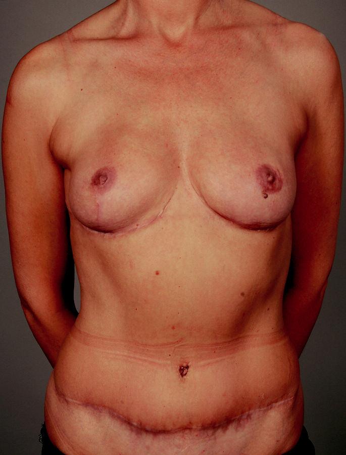 Obr. 6b.... ale též rekonstrukci menších prsů a zlepšení převislého břicha..